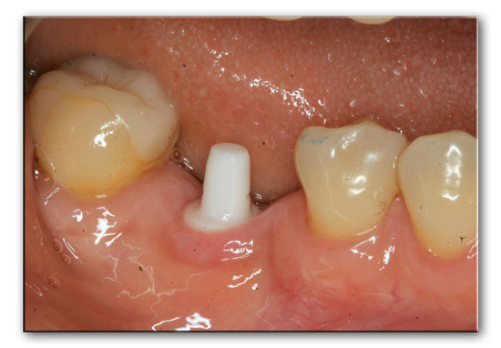 Zirconia-implant-case-1-implant