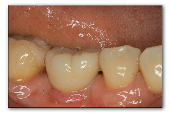 Zirconia-implant-case-1-with-crown