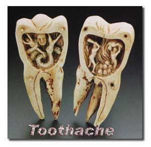 Toothache Torment