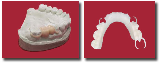 acetat resin partial as protection for a new implant
