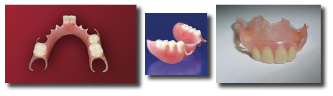 flexite or valplast partial denture to protext a new dental implant