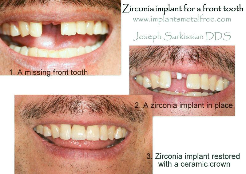 Zirconia-collage-(3)